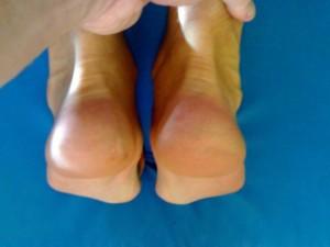 Symetria po terapii manualnej