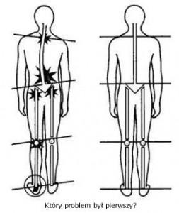 Schorzenia wynikające z braku symetrii